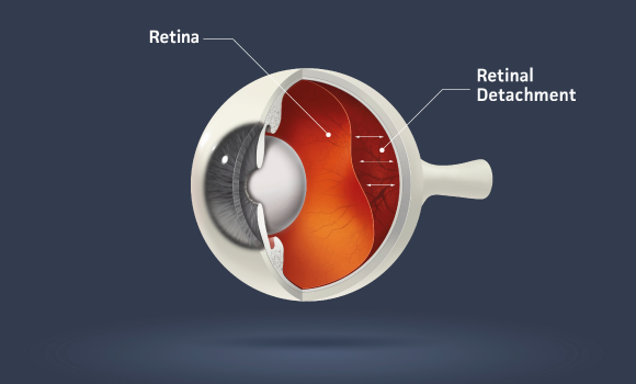 Retinal Detachments