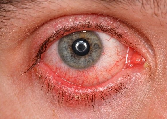 Corneal & External Eye Disease